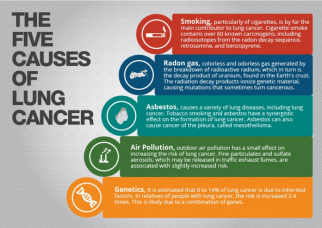 causes_of_lung_cancer